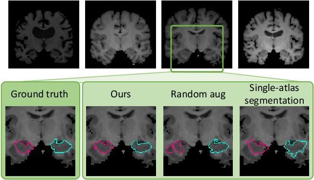 Figure 1 for Data augmentation using learned transformations for one-shot medical image segmentation