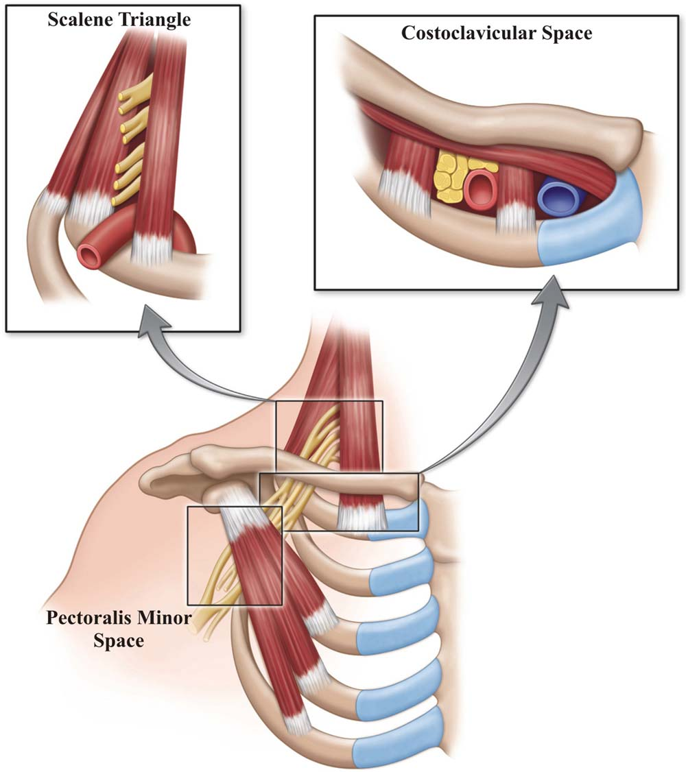 Thoracic outlet syndrome: a neurological and vascular disorder ...