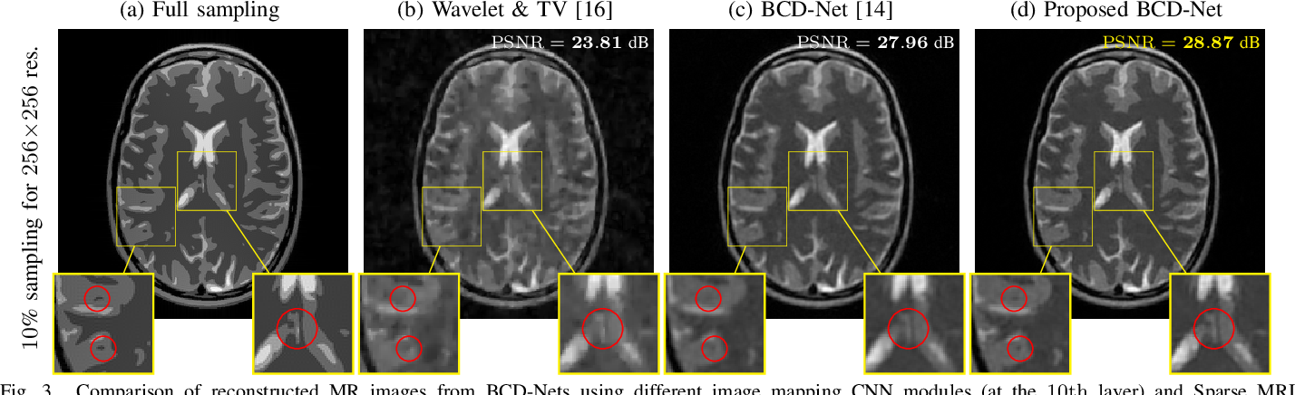 Figure 3 for Deep BCD-Net Using Identical Encoding-Decoding CNN Structures for Iterative Image Recovery