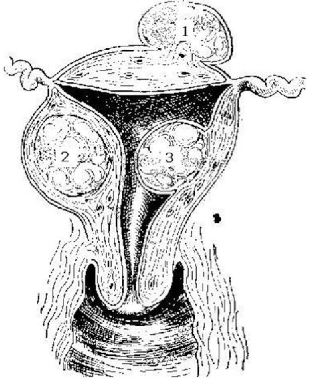 Figure 4 4 from Dysmenorrhea and Menorrhagia - Semantic Scholar