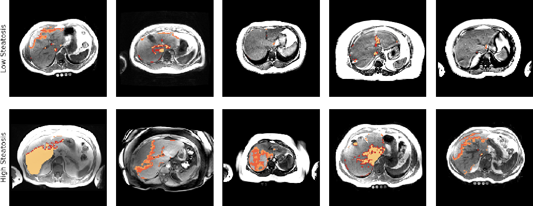 Figure 2 for Unsupervised deep clustering for predictive texture pattern discovery in medical images