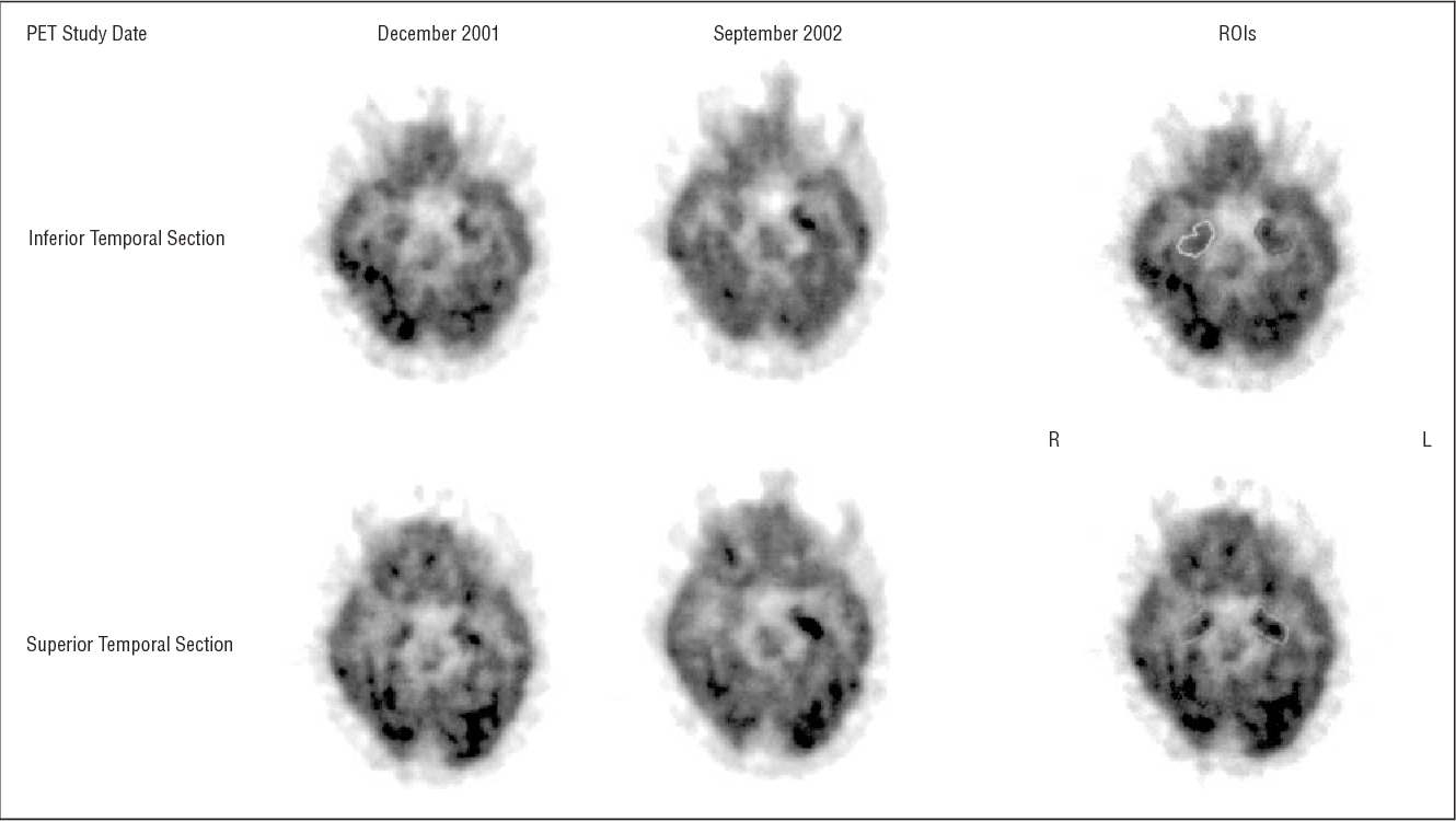 Figure 2. Selected transaxial 18F-fluoro-2-deoxy-D-glucose positron emission tomography (PET) sections of the first (December 2001) and fourth (September 2002) PET studies showing increasingly enhanced focal tracer accumulation in the left medial temporal lobe and regions of interest (ROIs) applied for analysis. R, indicates right; L, left.