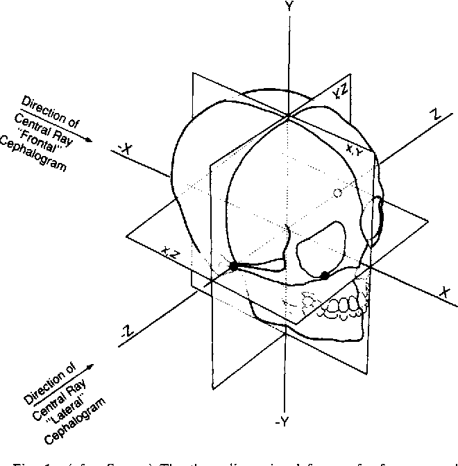Transverse Development Of The Human Jaws Between The Ages Of 8 5 And