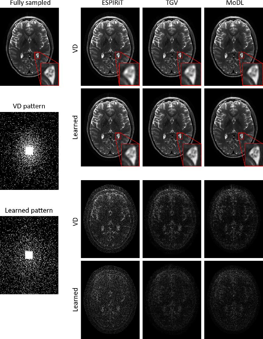 Figure 4 for Extending LOUPE for K-space Under-sampling Pattern Optimization in Multi-coil MRI