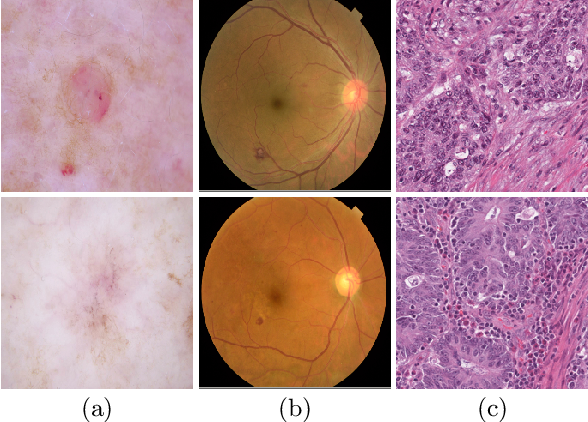 Figure 1 for Distractor-Aware Neuron Intrinsic Learning for Generic 2D Medical Image Classifications