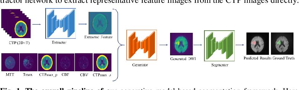 Figure 1 for Generative Model-Based Ischemic Stroke Lesion Segmentation