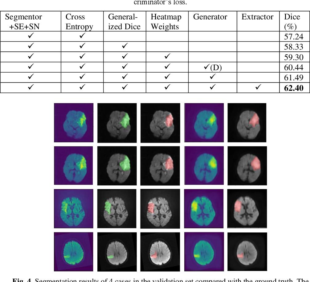 Figure 2 for Generative Model-Based Ischemic Stroke Lesion Segmentation