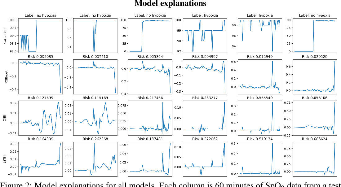 Figure 2 for Anesthesiologist-level forecasting of hypoxemia with only SpO2 data using deep learning