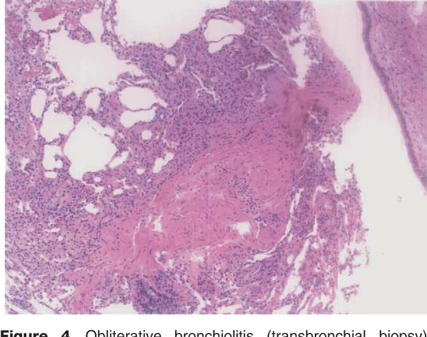 Figure 4 Obliterative bronchiolitis (transbronchial biopsy). Fibroproliferative tissue narrows the bronchiole's lumen with a mild degree of inflammatory cell infiltration of the peribronchiolar tissue. Magnification 10.