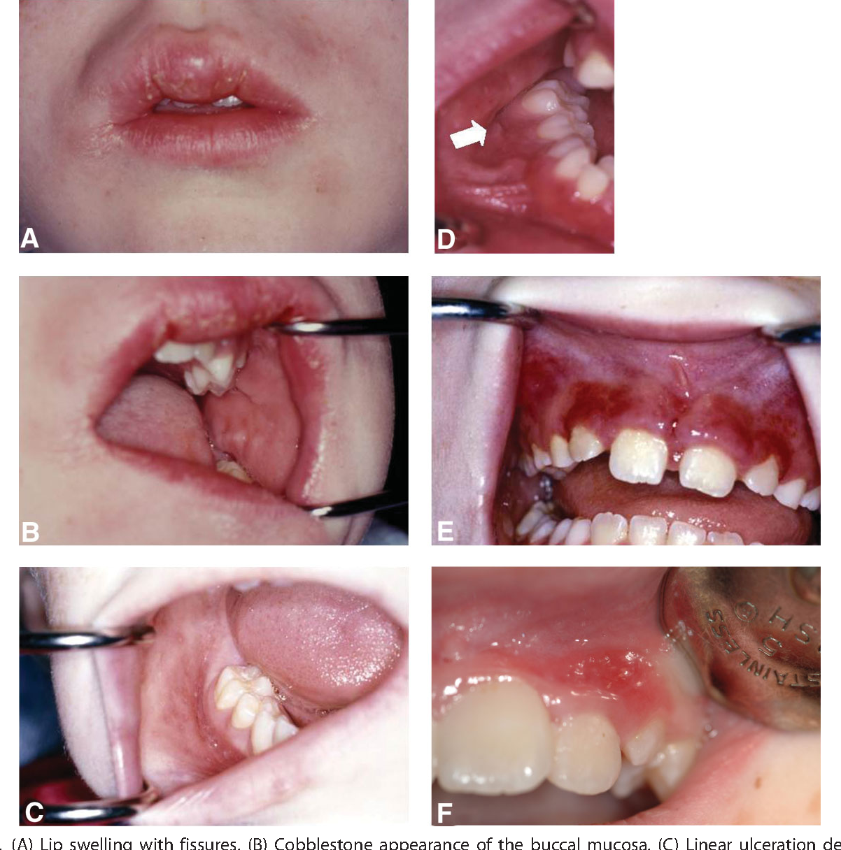 FIGURE 1. (A) Lip swelling with fissures. (B) Cobblestone appearance