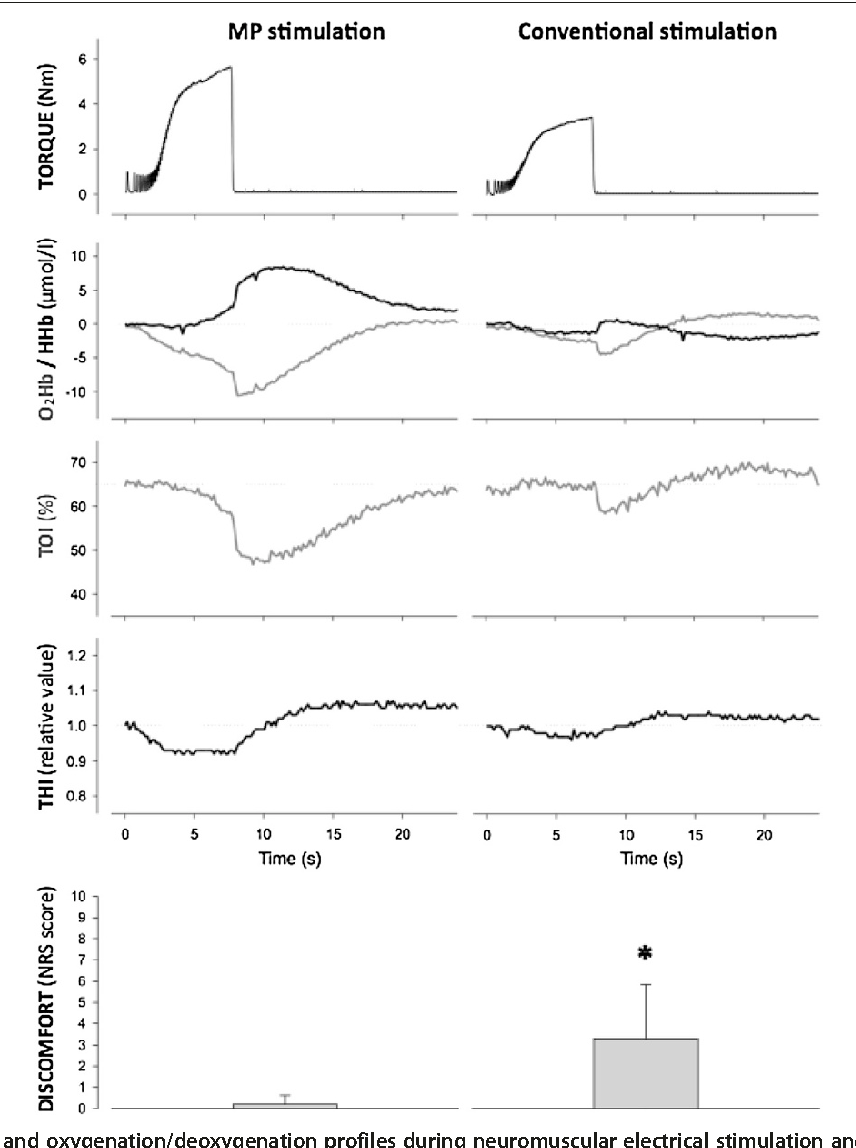 Muscle Motor Point Identification Is Essential For Optimizing Schematic Of The Electronic Stimulation Timer Neuromuscular Electrical Use Semantic Scholar