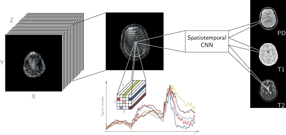 Figure 1 for Magnetic Resonance Fingerprinting Reconstruction via Spatiotemporal Convolutional Neural Networks
