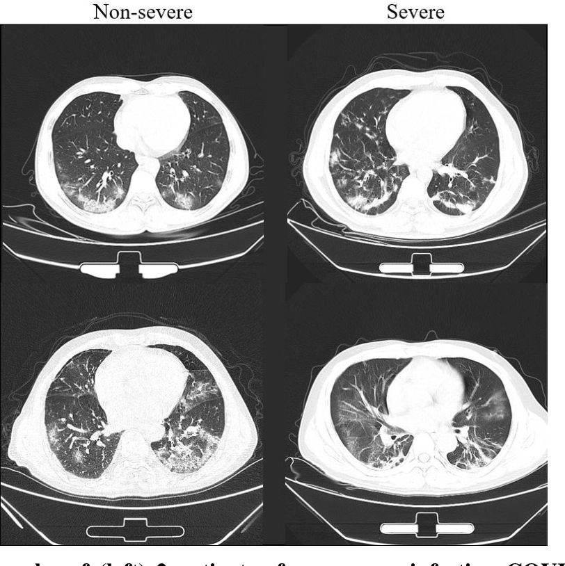 Figure 2 for Severity Assessment of Coronavirus Disease 2019 (COVID-19) Using Quantitative Features from Chest CT Images