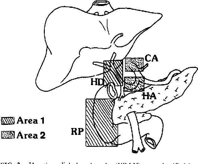 Significance Of Hepatic Pedicle Lymph Node Involvement In Patients