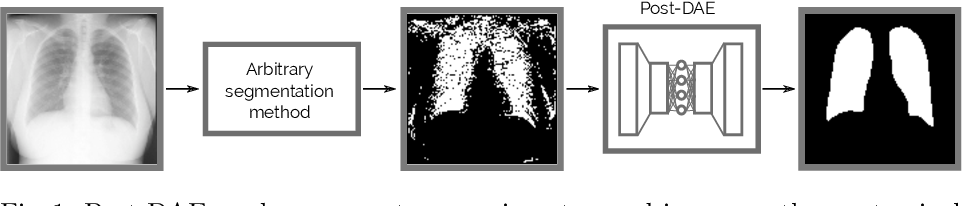 Figure 1 for Anatomical Priors for Image Segmentation via Post-Processing with Denoising Autoencoders