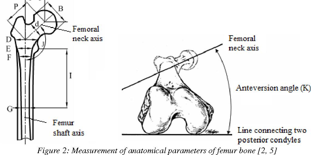 Measuring Geometric Parameters of Proximal Femur by Using Reverse ...