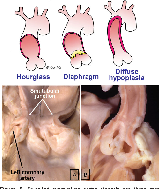 Figure 5 From Structure And Anatomy Of The Aortic Root Semantic