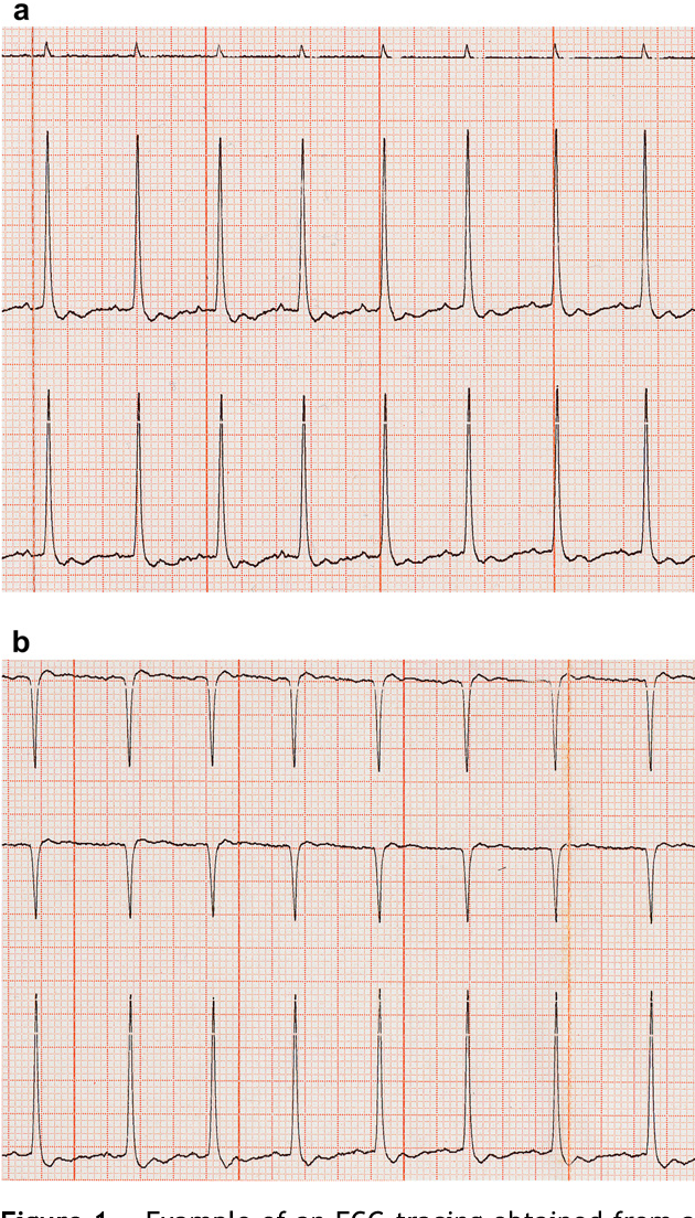 The surface electrocardiogram in domestic ferrets. - Semantic Scholar