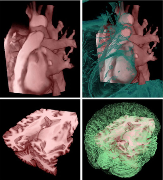 Fig. 11 Multiple TF-based clipping for anatomical feature of interest (FOI) enhancement. Images in the column 1 illustrate the artifact-free volume clipping, while images in the column 2 are enhanced in a semitransparent whole volume environment