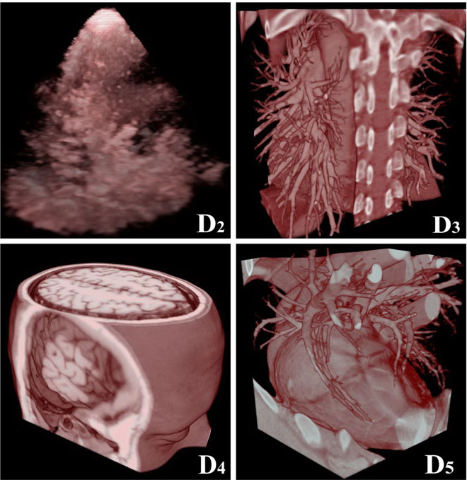 Fig. 4 Images generated with GPU-based raycasting. The post-color attenuated (PosColAtt) classification algorithm is used for interactive classification