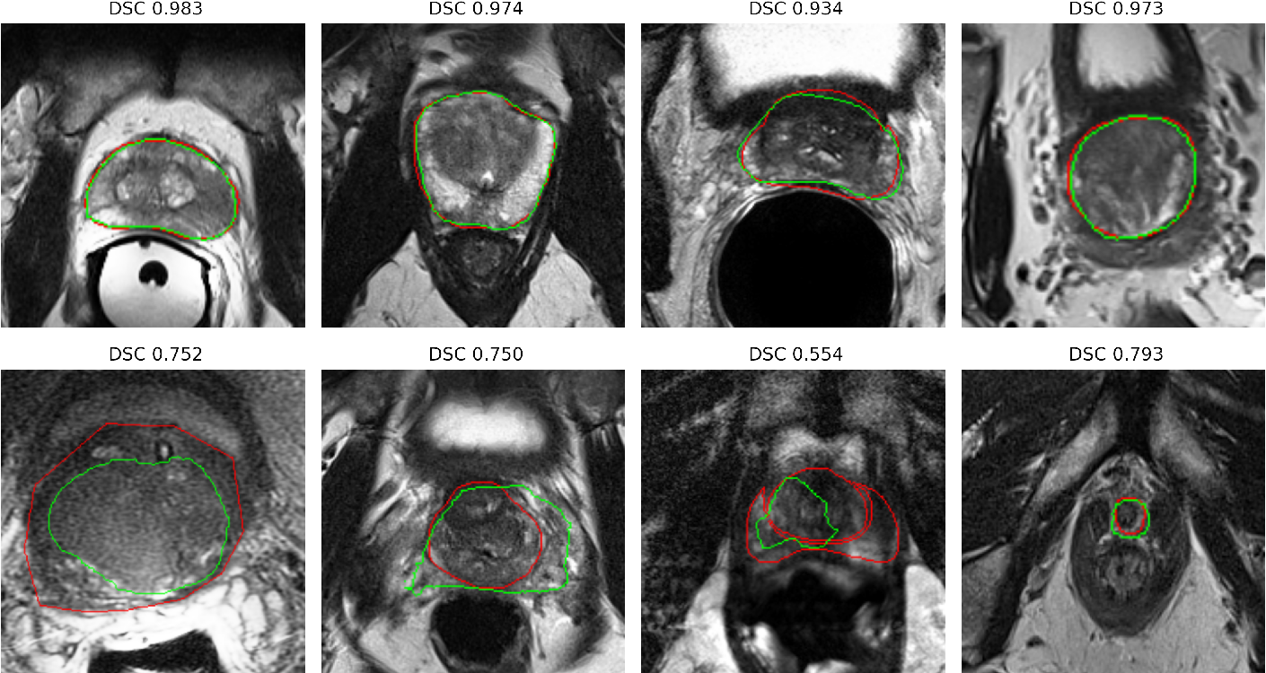 Figure 2 for Deep learning in magnetic resonance prostate segmentation: A review and a new perspective
