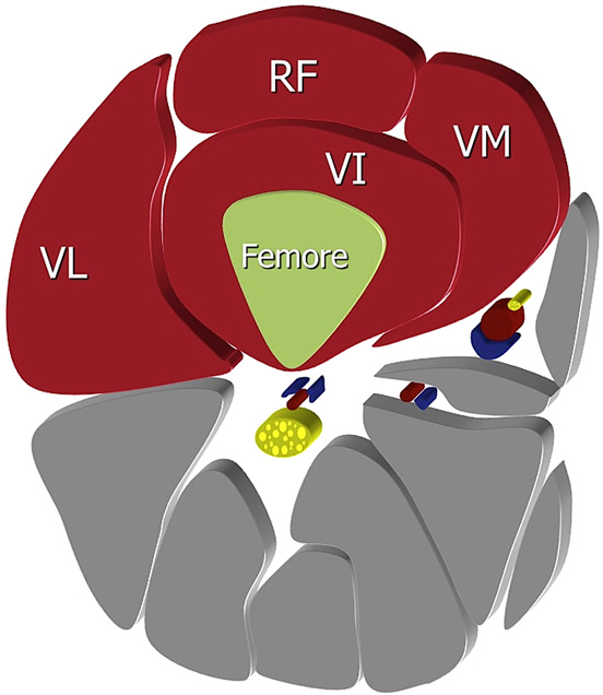 2 anatomy of the quadriceps muscle  axial plane (diagram): vl