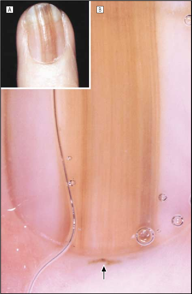 Figure 6 from Dermoscopic examination of nail pigmentation ...