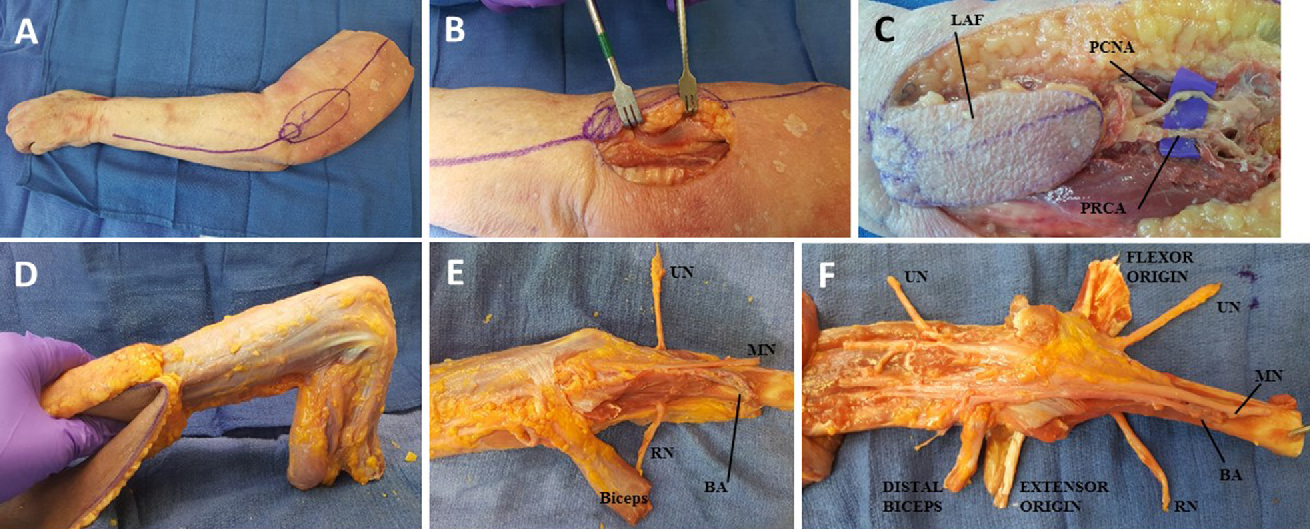Table Iii From Elbow Vascularized Composite Allotransplantation