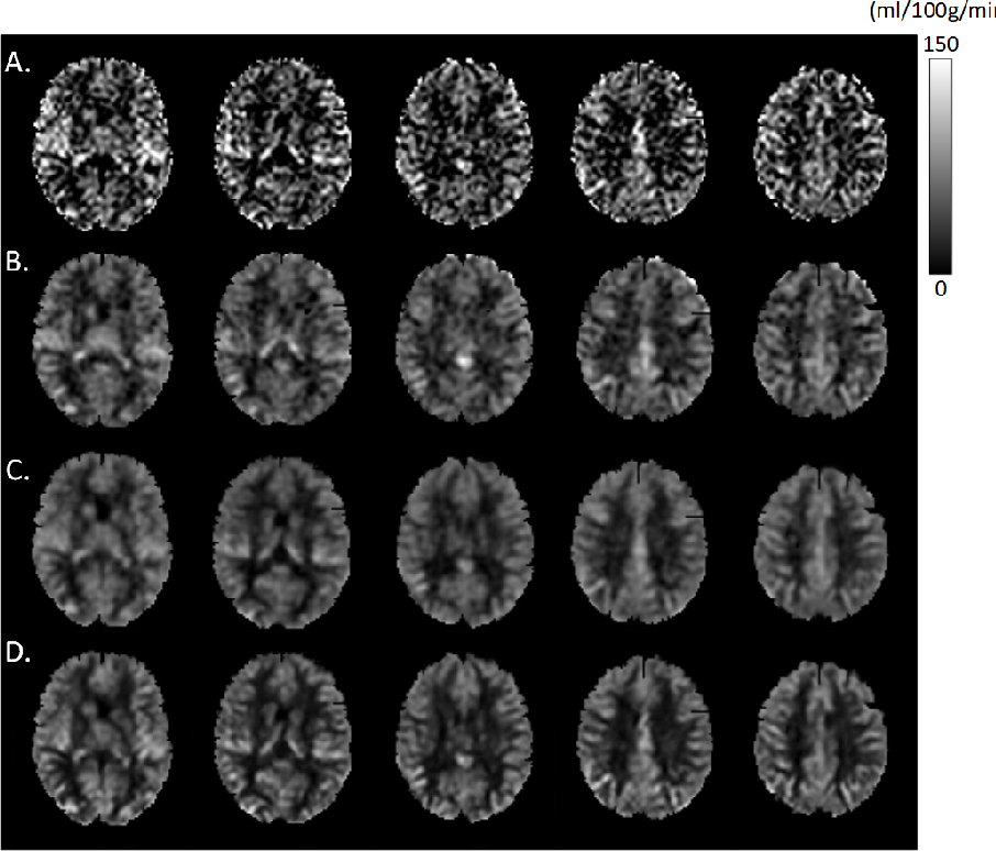 Figure 3 for A Learning-from-noise Dilated Wide Activation Network for denoising Arterial Spin Labeling (ASL) Perfusion Images