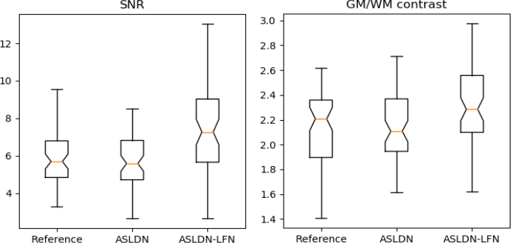 Figure 4 for A Learning-from-noise Dilated Wide Activation Network for denoising Arterial Spin Labeling (ASL) Perfusion Images