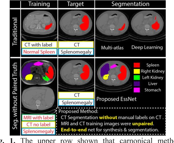 Figure 1 for Adversarial Synthesis Learning Enables Segmentation Without Target Modality Ground Truth