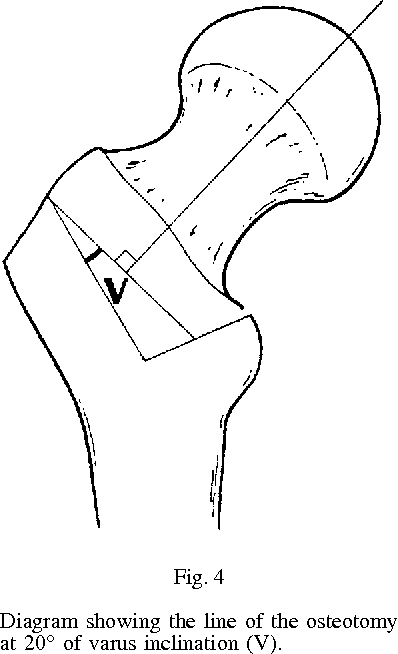 Trochanteric Rotational Osteotomy For Osteonecrosis Of The Femoral