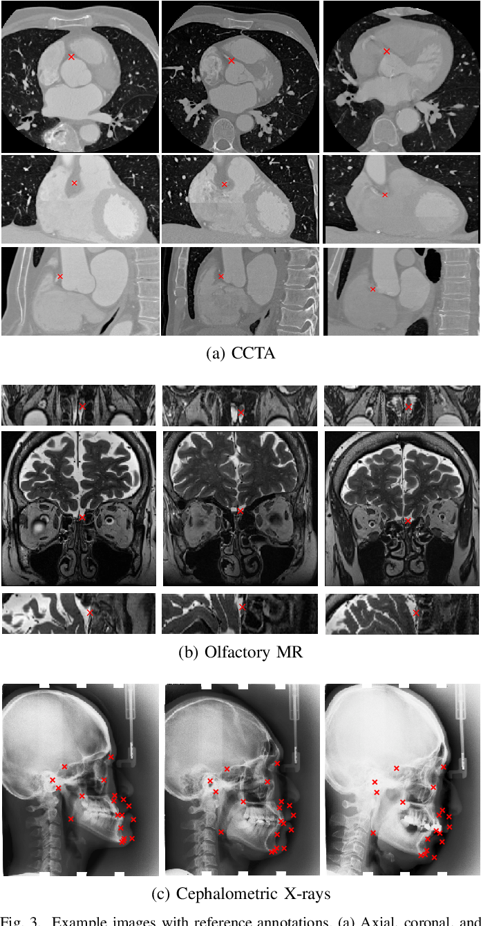Figure 3 for Deep Learning-Based Regression and Classification for Automatic Landmark Localization in Medical Images
