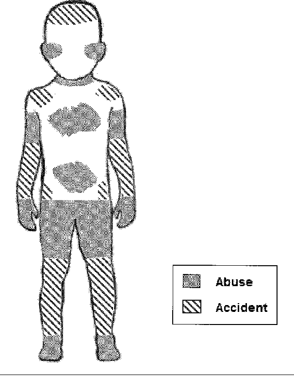 Figure 1 From Cutaneous Manifestations Of Child Abuse