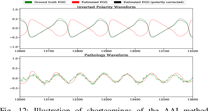 Figure 4 for Adversarial Approximate Inference for Speech to Electroglottograph Conversion