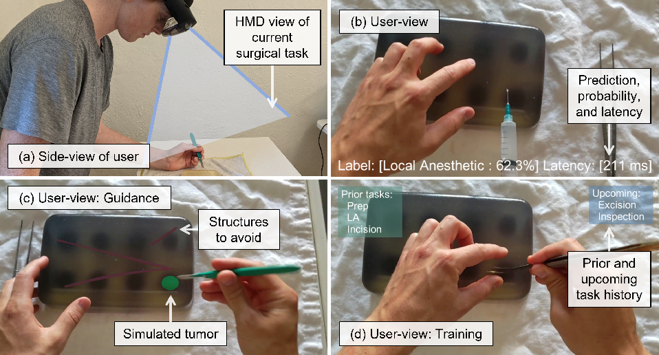 Figure 1 for SurgeonAssist-Net: Towards Context-Aware Head-Mounted Display-Based Augmented Reality for Surgical Guidance