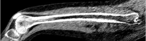 Figure 1 for Towards whole-body CT Bone Segmentation