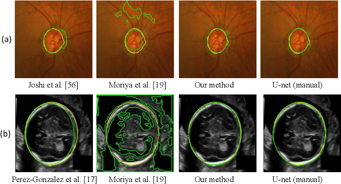 Figure 2 for Annotation-Efficient Learning for Medical Image Segmentation based on Noisy Pseudo Labels and Adversarial Learning