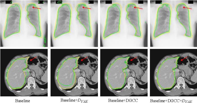 Figure 4 for Annotation-Efficient Learning for Medical Image Segmentation based on Noisy Pseudo Labels and Adversarial Learning