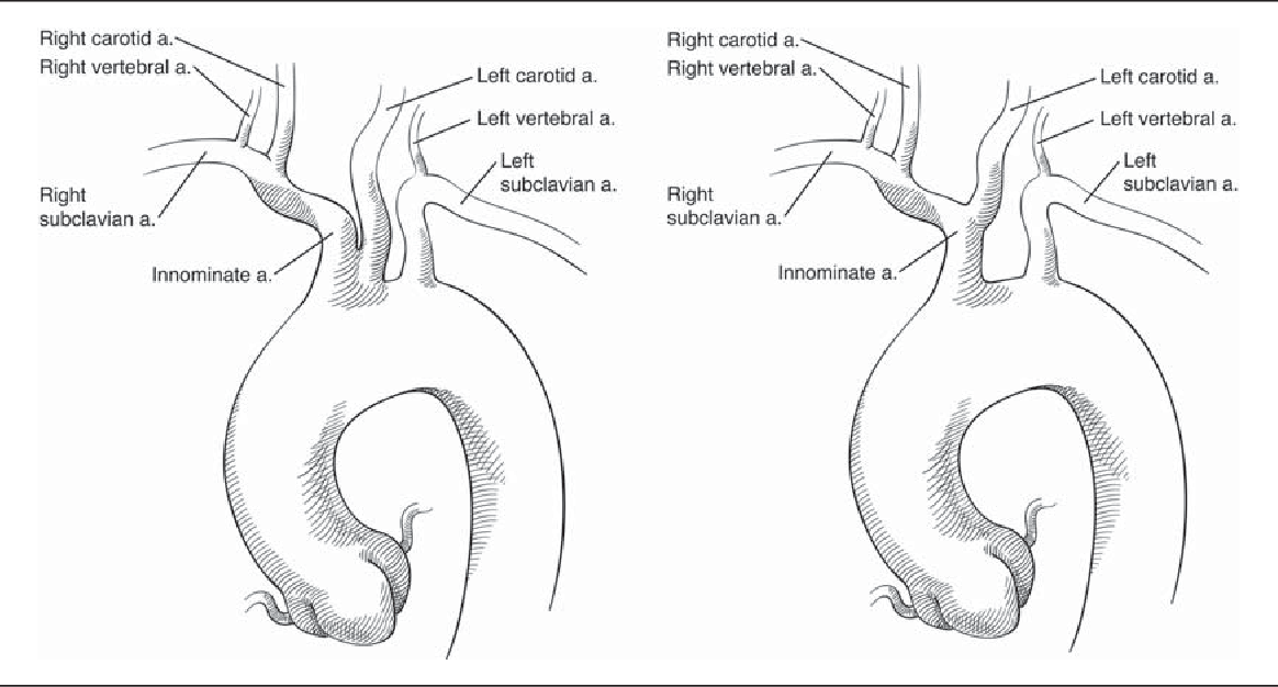 Figure 1 from \'Bovine\' aortic arch - a marker for thoracic aortic ...