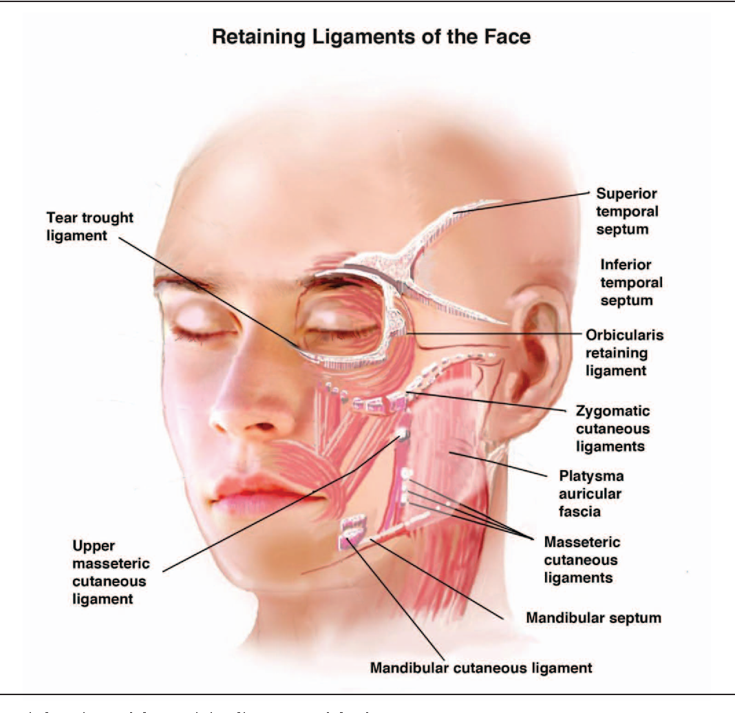 Retaining ligaments of the face: review of anatomy and clinical ...