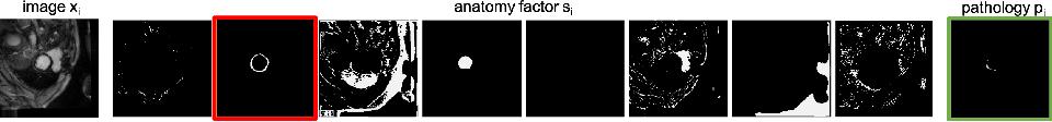 Figure 1 for Semi-supervised Pathology Segmentation with Disentangled Representations