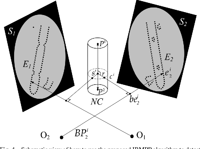 Fig. 4. Schematic view of how to use the proposed IBMPP algorithm to detect nail from the input images.