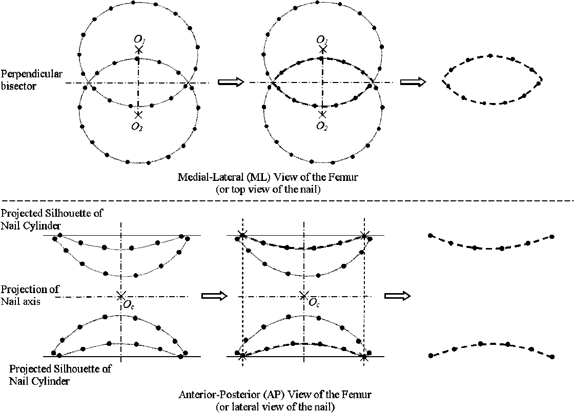 Fig. 6. Schematic view of how to simulate X-ray projections of the DLH model. Top row: simulated X-ray projections into a ML image; bottom row: simulated X-ray projections into an AP image.