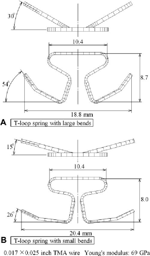 Pdf Numerical Simulations Of Canine Retraction With T Loop Springs