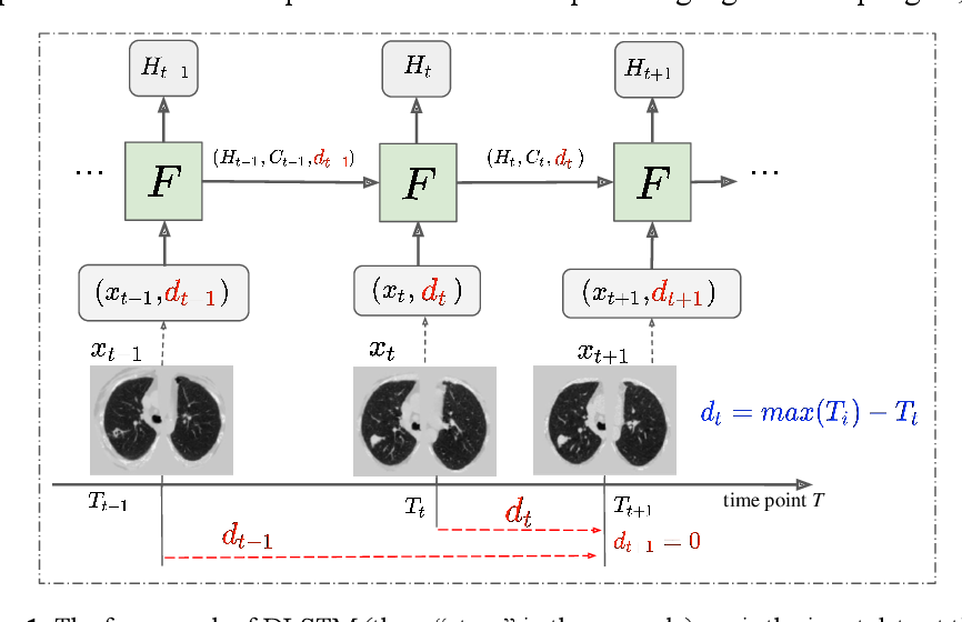 Figure 1 for Distanced LSTM: Time-Distanced Gates in Long Short-Term Memory Models for Lung Cancer Detection