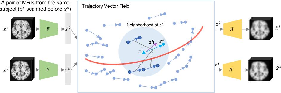 Figure 1 for Self-Supervised Longitudinal Neighbourhood Embedding