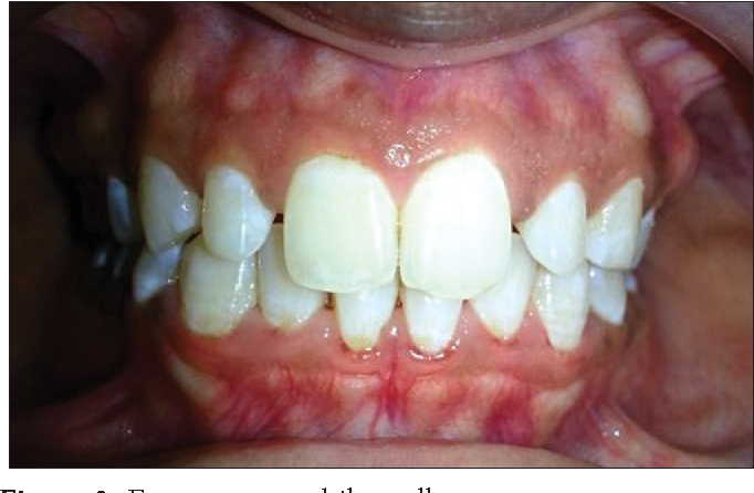 Figure 2 from Buccal Exostosis: A Rare Entity - Semantic Scholar