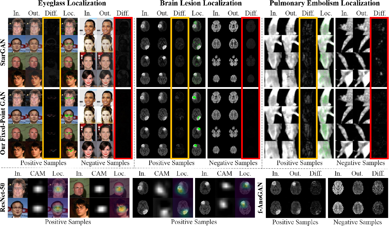 Figure 1 for Learning Fixed Points in Generative Adversarial Networks: From Image-to-Image Translation to Disease Detection and Localization