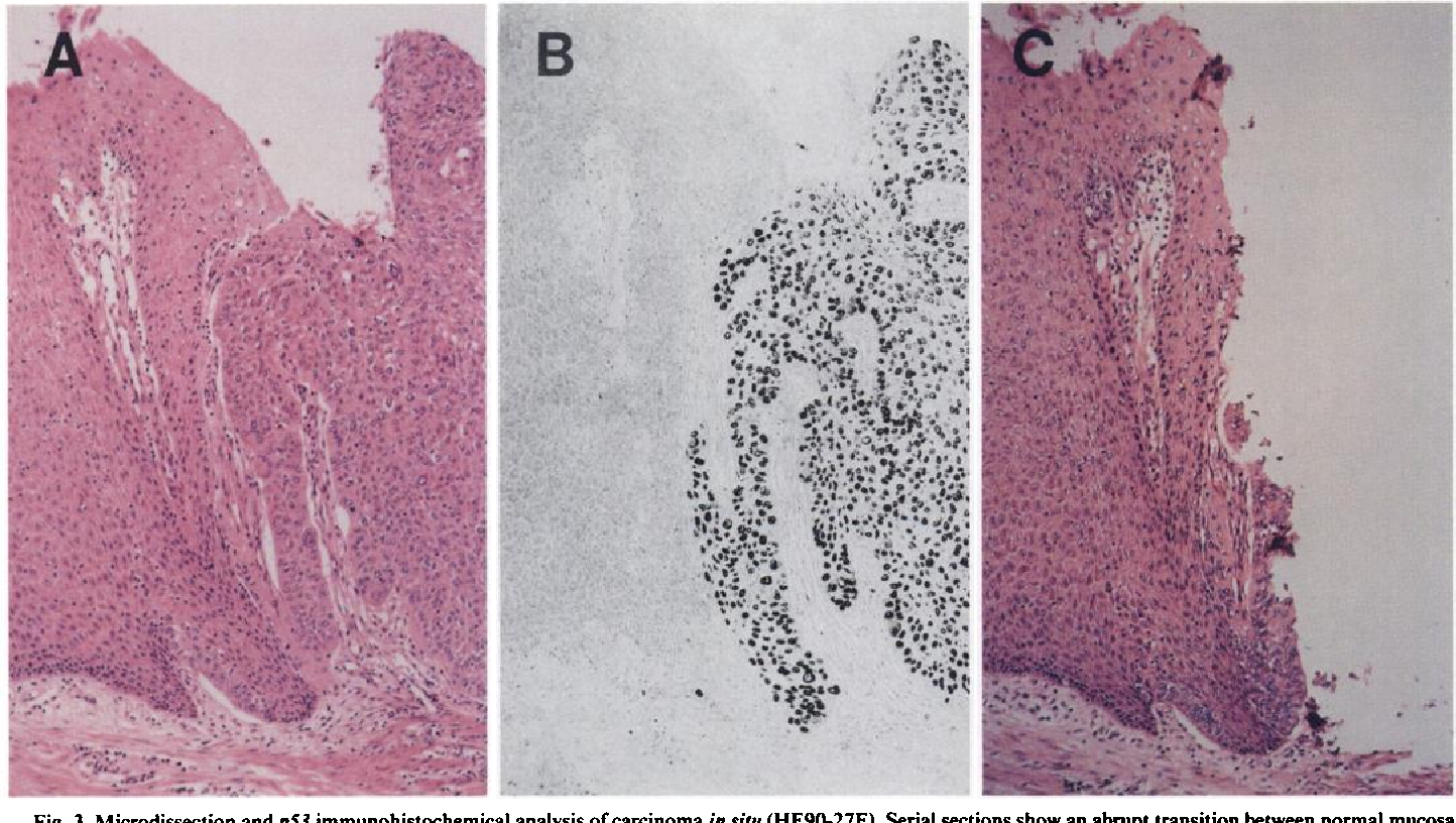 Fig. 3. Microdissection and p53 immunohistochemical analysis ofcarcinoma in situ (HE9O-27E). Serial sections show an abrupt transition between normal mucosa